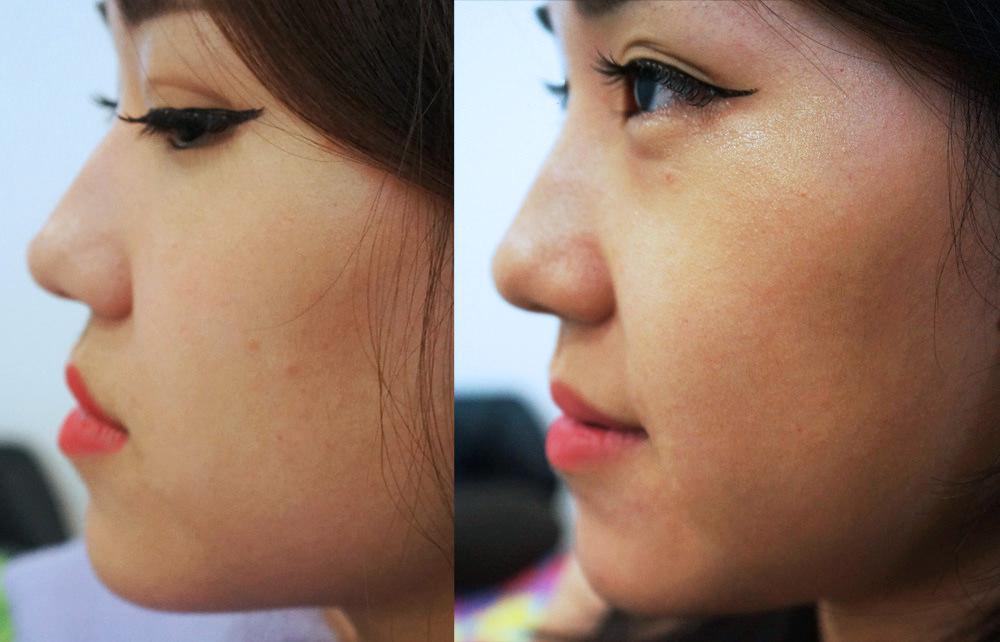 What You Need To Know About Nose Threadlift - Jebhealth Articles